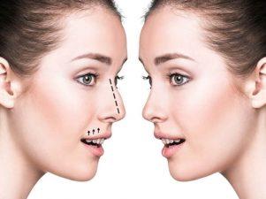 سیتوپلاستی بینی چیست؟