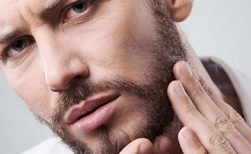 جلوگیری از ریزش موی صورت در مردان