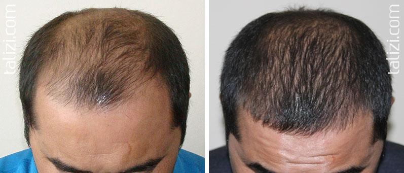 کاشت مو در محل سوختگی