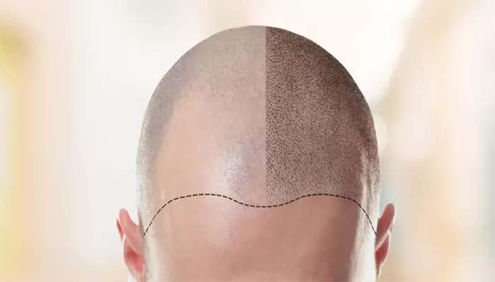 کاربرد های کاشت مو
