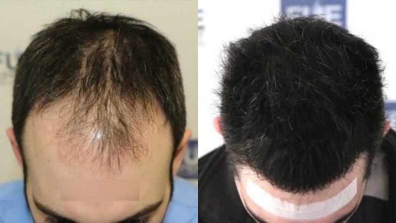 تفاوت کاشت مو زنان و مردان