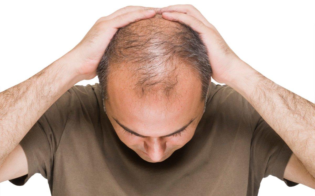 ریزش مو بعد از کاشت مو