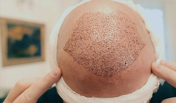 کاشت مو چند ساعت طول میکشد
