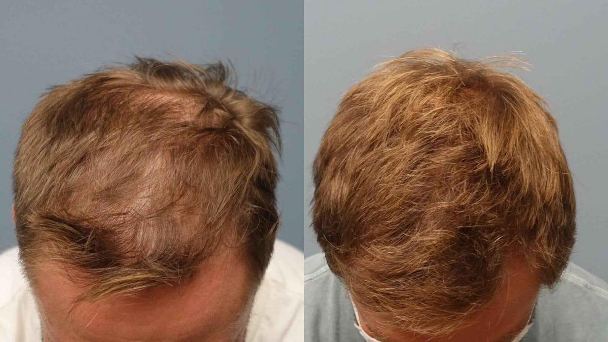 کاشت مو به روش میکروگرافت