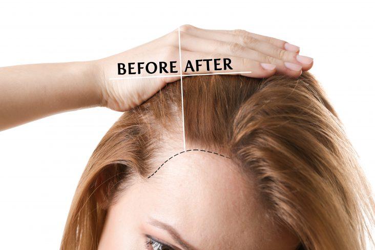 چگونه از موهای کاشته شده مراقبت کنیم