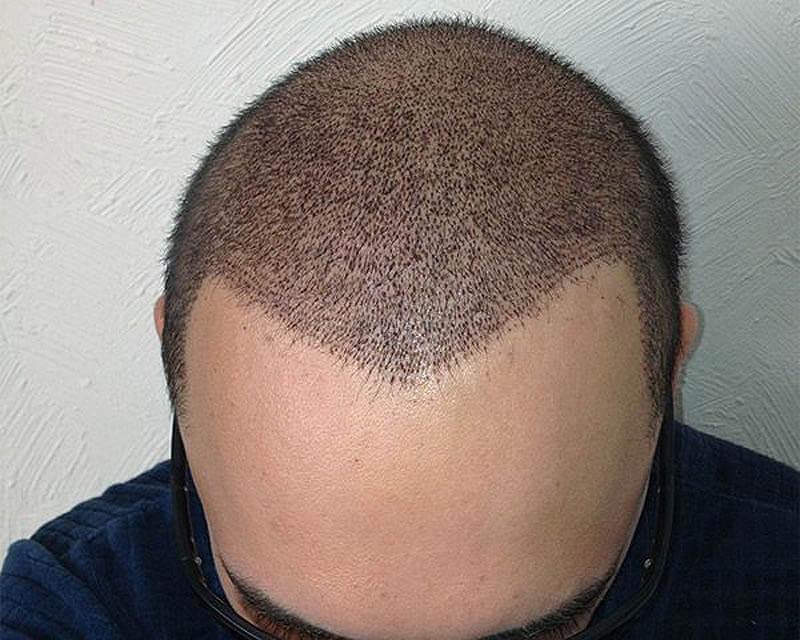 کدام روش کاشت مو بهتر است