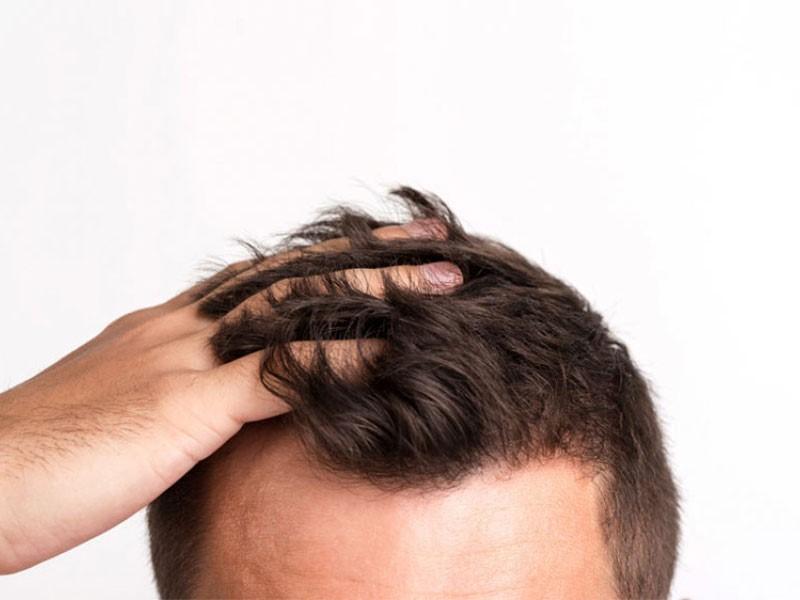 کاشت مو با بانک موی سایر اعضای بدن