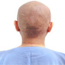 کاشت مو بعد از شیمی درمانی