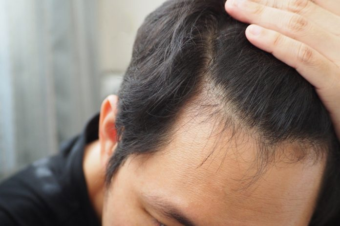 ارتباط کبد چرب و ریزش مو چیست؟