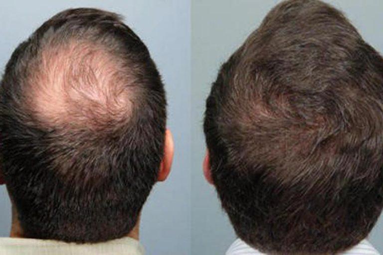 جدیدترین درمان ریزش مو ارثی