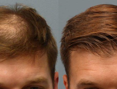 کاشت مو با روش الیاف مصنوعی