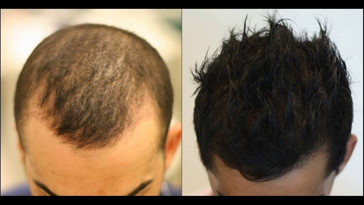 درمان ریزش مو ارثی با prp