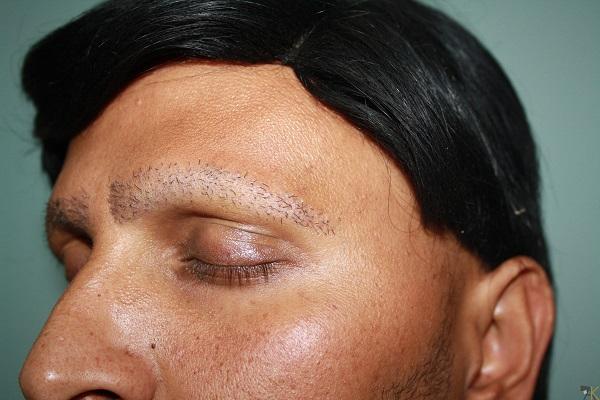 روش های مختلفی برای کاشت مو در آقایان وجود دارد