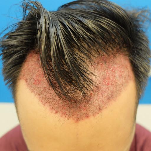 قرمزی سر بعد از عمل کاشت مو