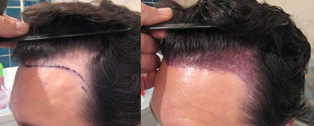 قرمزی سر بعد از عمل کاشت مو می تواند بر اثر عفونت مو باشد