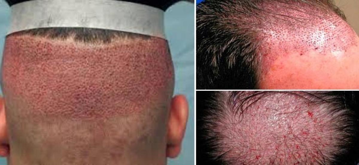 قرمزی سر بعد از عمل کاشت مو تا حدودی طبیعی است