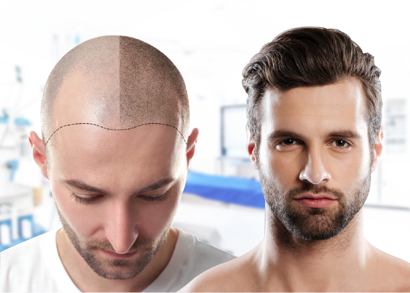 کاشت موی چسبی