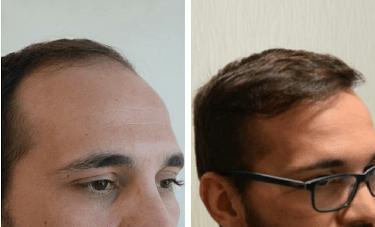 کاشت مو چسبی چگونه است؟