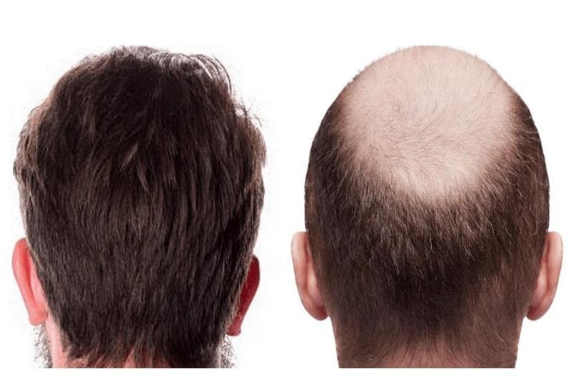 پیشگیری از ریزش مو به علت چربی خون بالا