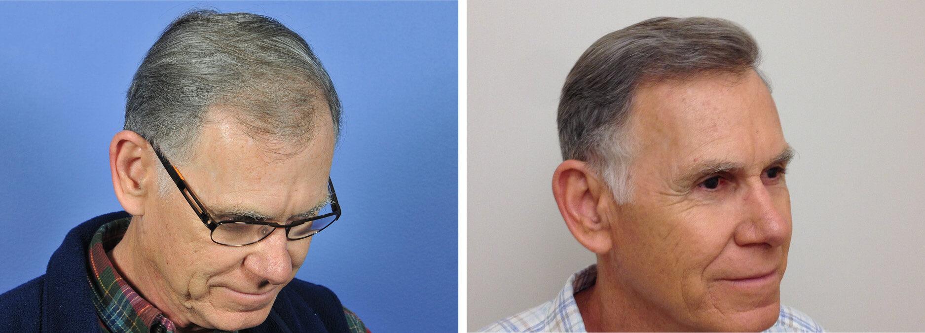 محدودیت های کاشت مو برای سالمندان
