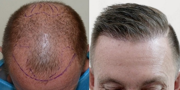 روش کاشت موی SUT