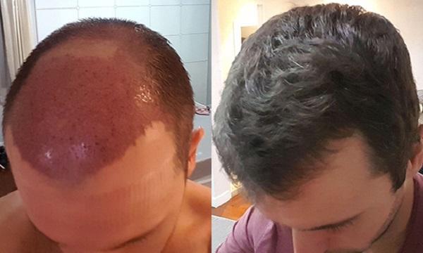 مزایای کاشت موی SUT
