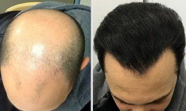 کاشت مو به روش سافر