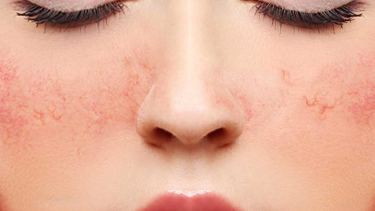 رفع التهاب پوست صورت
