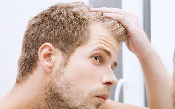 کاشت مو با استفاده از ریش