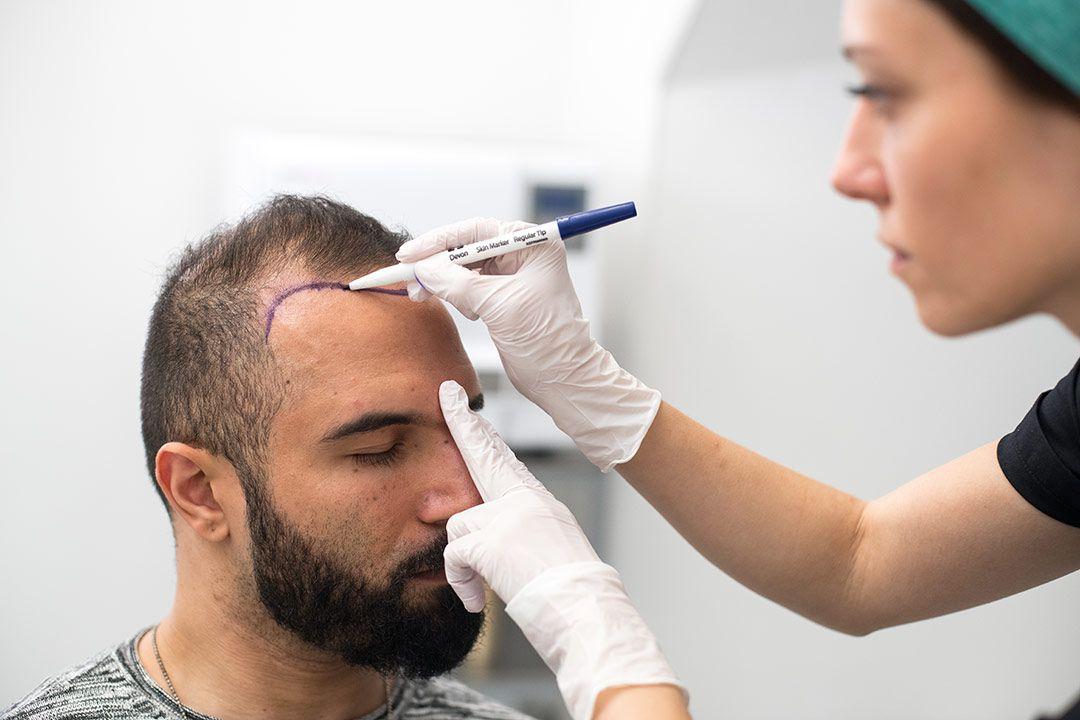 مزایای کاشت مو با استفاده از ریش چیست؟