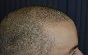 کاشت مو با بانک موی ضعیف چه پیامد هایی دارد؟